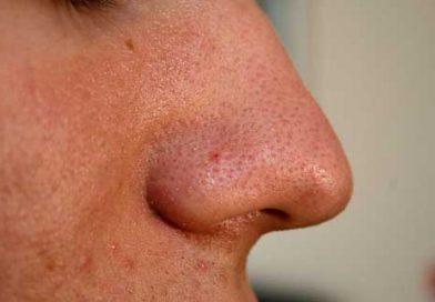 Ini Dia Cara Alami Menghilangkan Komedo di Hidung